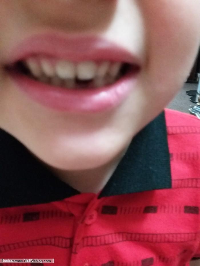 افتادن اولین دندون