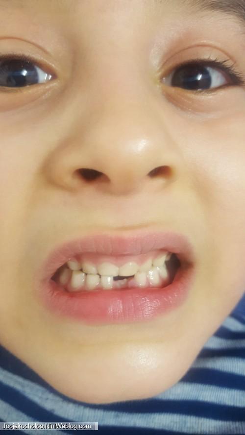 اولین دندون موشم افتاد🤓